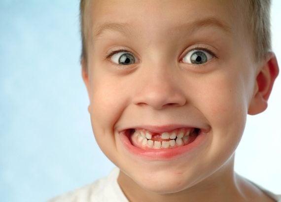 Quando nascem os dentes e quando caem os dentes de leite